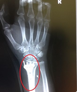 こんな感じの金属の塊が手に埋め込まれています※私のレントゲン写真ではありません
